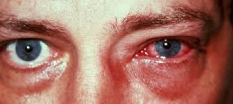 escozor en los ojos y lagrimeo
